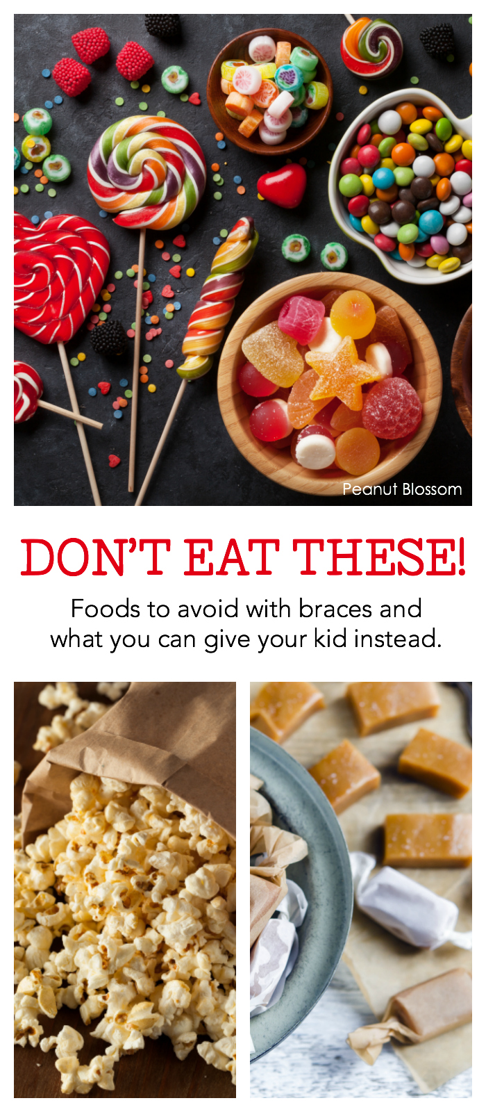 Don't eat these!: What can't you eat with braces | Hull & Coleman South Charlotte orthodontists