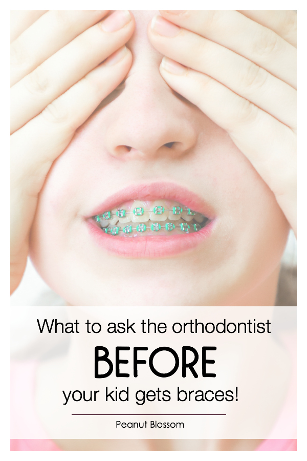 What to ask the best orthodontist in Charlotte, NC before your kids get braces