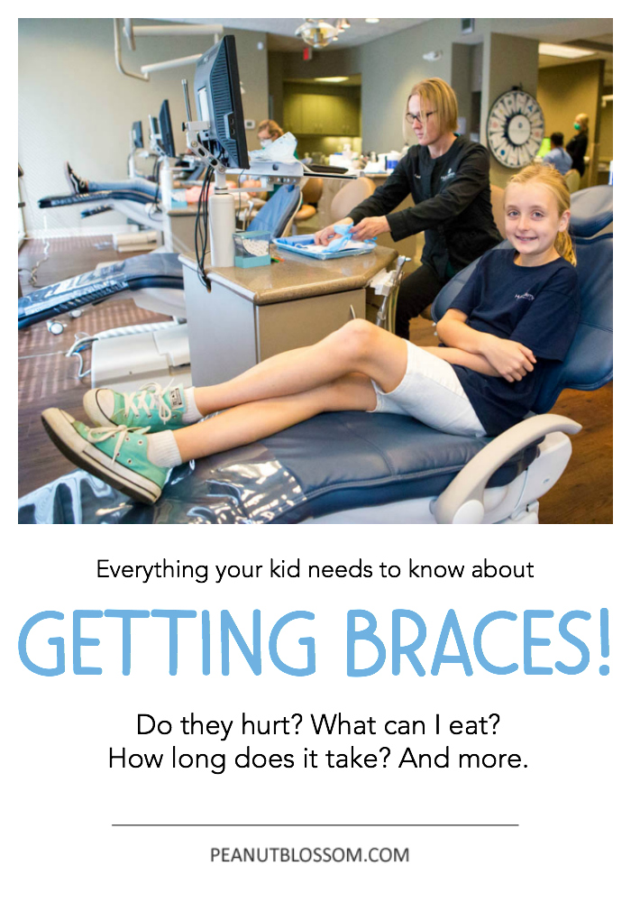 EVERYTHING your kid needs to know about getting braces: Do braces hurt? What can I eat with braces? and more! Kid-to-kid advice from a girl who is one year into orthodontic treatment.